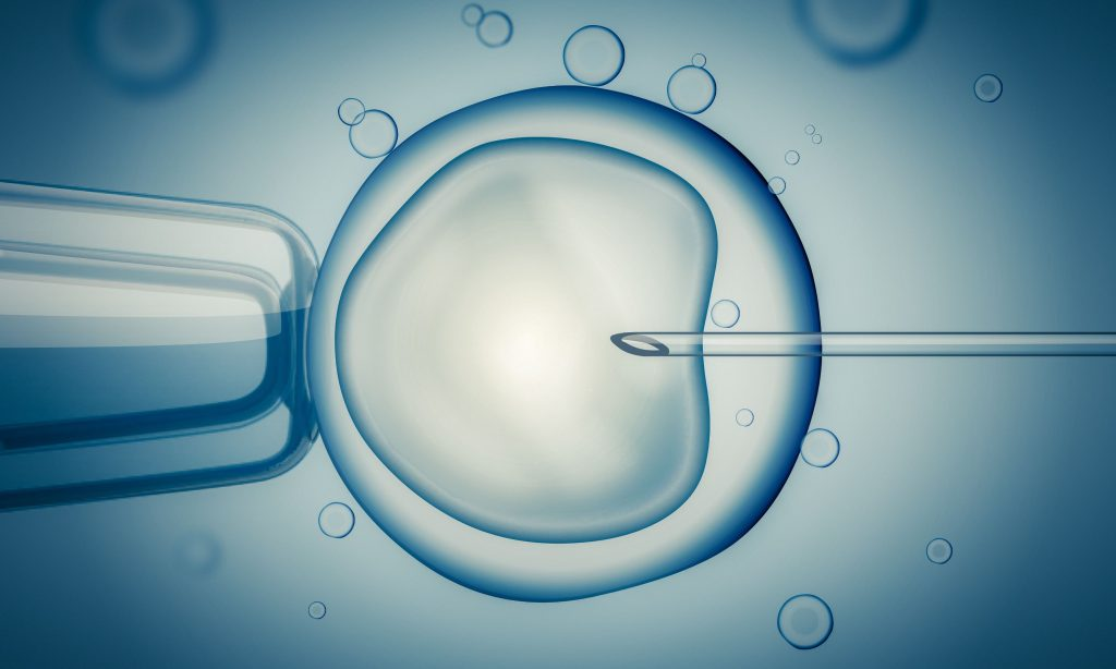 IVF (in vitro fertilisation) or insemination of female egg with microscope. Digital illustration.